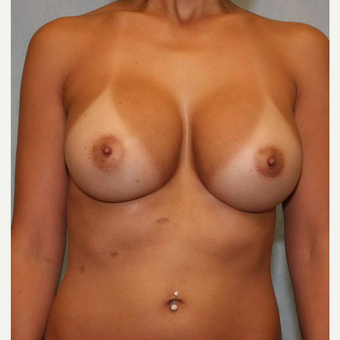 25-34 year old woman treated with Breast Augmentation after 3487495