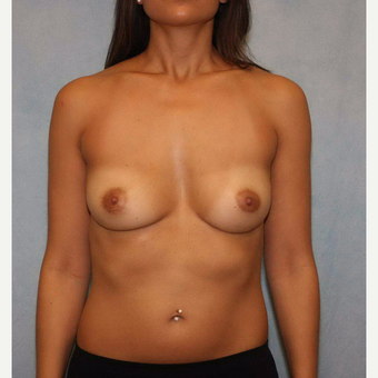 25-34 year old woman treated with Breast Augmentation before 3487495