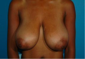 Breast Reduction 874526