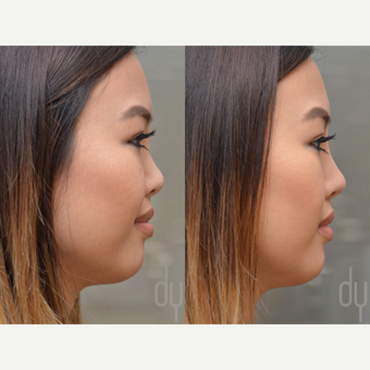 Non Surgical Rhinoplasty before 3322526