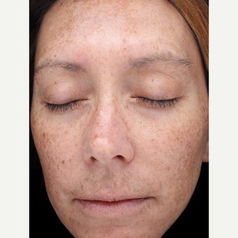 39 year old woman with melasma treated with Halo Laser before 3656479