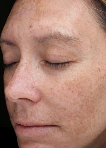 39 year old woman with melasma treated with Halo Laser 3656479