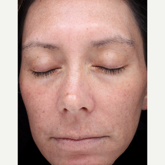 39 year old woman with melasma treated with Halo Laser after 3656479
