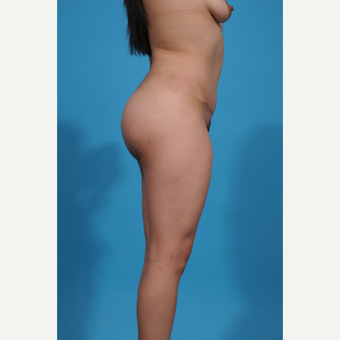 25-34 year old woman treated with Brazilian Butt Lift after 3776939