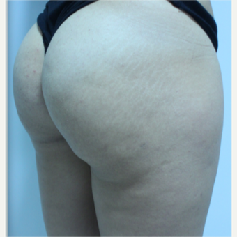 18-24 year old woman treated with Brazilian Butt Lift after 3184631