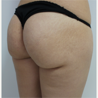 18-24 year old woman treated with Brazilian Butt Lift before 3184631
