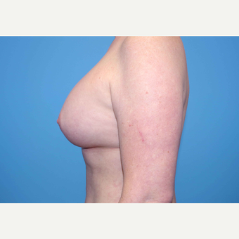 35-44 year old woman treated with Breast Implants after 3440898