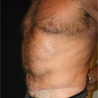 45-54 year old man treated with Tummy Tuck 1761262