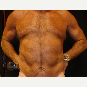 45-54 year old man treated with Tummy Tuck before 1761262