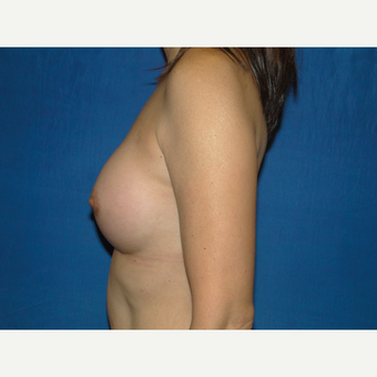 Breast Augmentation with 300 cc Silicone after 3776097