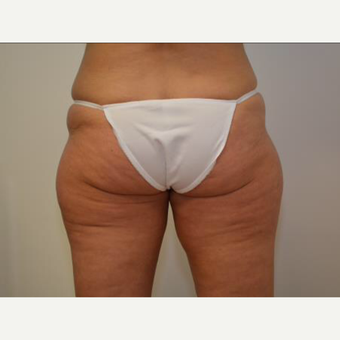 35-44 year old woman treated with CoolSculpting before 2064962