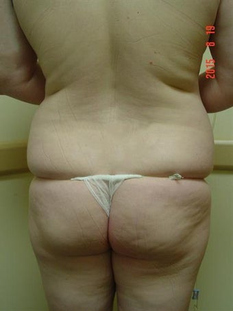 Liposuction Results 2628311