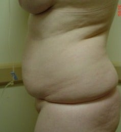 Liposuction Results before 2628311