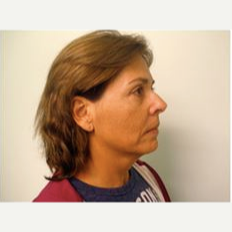 55-64 year old woman treated with Facelift before 3500880