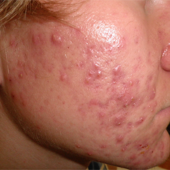 Acne can be cured with proper treatments. before 3703805