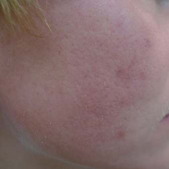 Acne can be cured with proper treatments. after 3703805