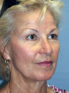 LiteLift™ and Eye Lid Surgery on 61-year-old Woman 1235674