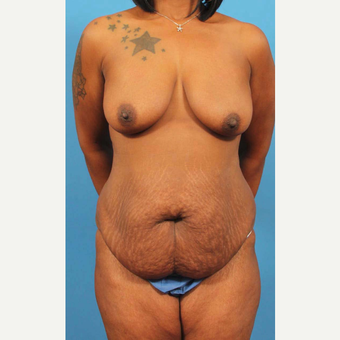 35-44 year old woman treated with Mommy Makeover before 3787069