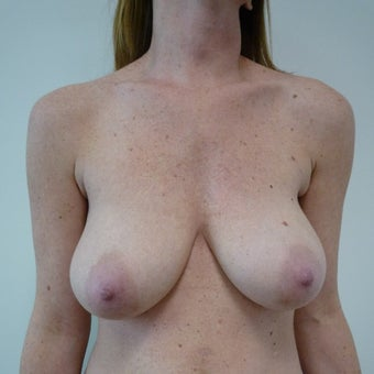 45-54 year old woman treated with Breast Lift before 1585213