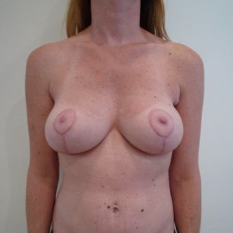 45-54 year old woman treated with Breast Lift after 1585213