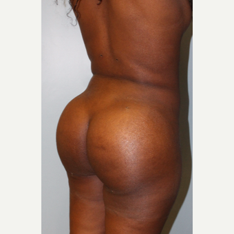 25-34 year old woman treated with Brazilian Butt Lift after 3401332
