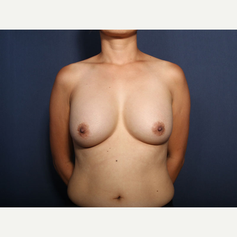 45-54 year old woman treated with Breast Implant Removal (view 1 of 2) before 3617440