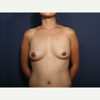 45-54 year old woman treated with Breast Implant Removal (view 1 of 2) after 3617440