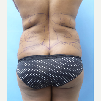 35-44 year old woman treated with Liposuction before 3168471