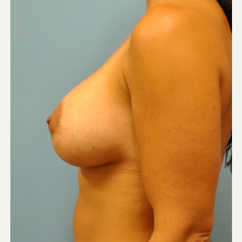 37 year old woman, Augmentation and circumareolar mastoexy, 425 cc filled to 450 cc after 3543311