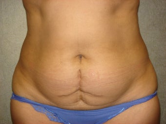 C.L.A.S.S ® Tummy Tuck before 926779