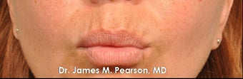 Lip Enhancement 925991