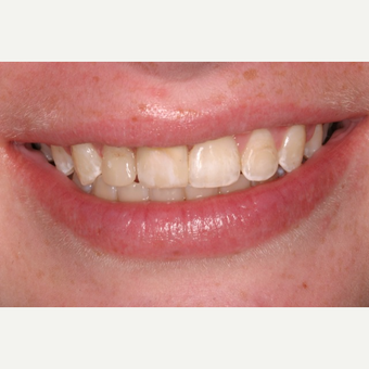 25-34 year old woman treated with Dental Implants before 3104328