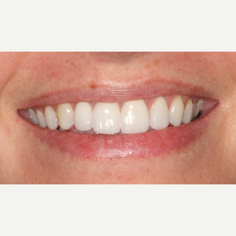 25-34 year old woman treated with Dental Implants after 3104328