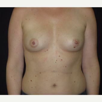 Breast Augmentation before 3035942