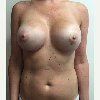 Breast Augmentation after 3035942