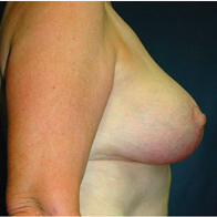 57 year old woman treated with Breast Lift after 3665920