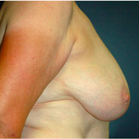 57 year old woman treated with Breast Lift before 3665920
