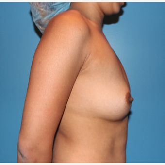 25-34 year old woman treated with Breast Augmentation before 3425756