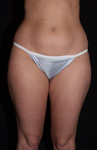 Vaser Liposuction of Lateral and Medial Thighs, Hips and Abdomen