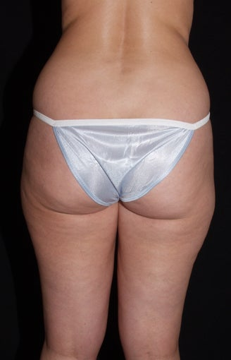 Vaser Liposuction of Lateral and Medial Thighs, Hips and Abdomen 624865