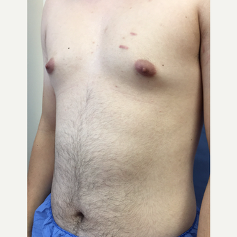25-34 year old man treated with Smart Lipo before 3371828