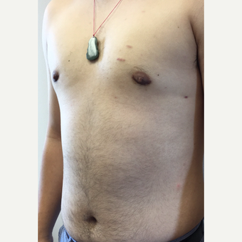 25-34 year old man treated with Smart Lipo after 3371828