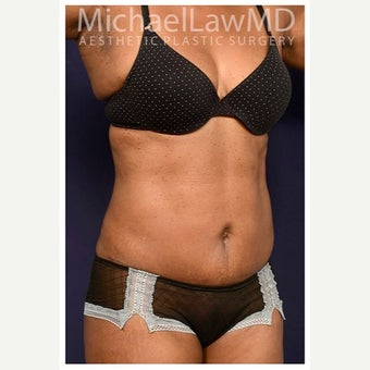 45-54 year old woman treated with Mini Tummy Tuck after 2149018
