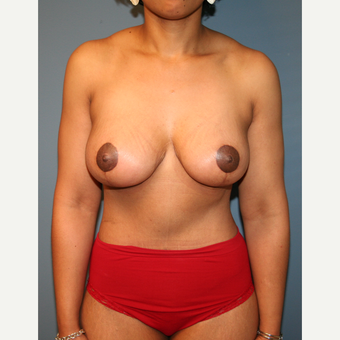 25-34 year old woman treated with Mommy Makeover after 3512010