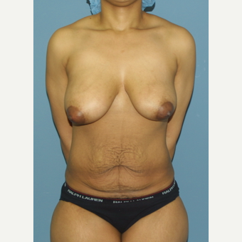 25-34 year old woman treated with Mommy Makeover before 3512010