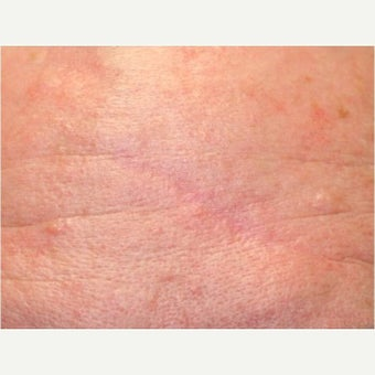 35-44 year old woman treated for Scar Removal after 2527694