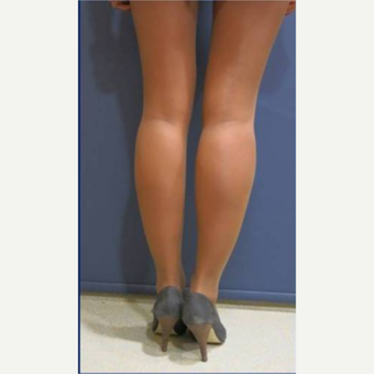 18-24 year old woman treated with Calf Implant after 3782005