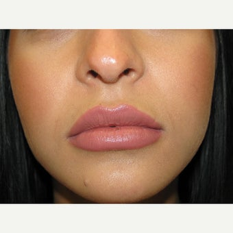 18-24 year old woman treated with Juvederm after 1540328