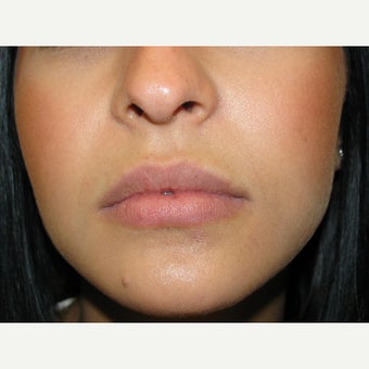 18-24 year old woman treated with Juvederm before 1540328