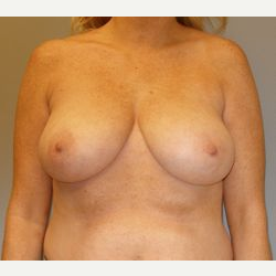 45-54 year old woman treated with Breast Reduction before 3280682